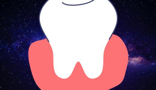 【歯医者】定期健診で学んだこと